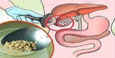 """De acordo com pesquisa publicada no jornal """"Life Science"""", a artemisinina, um derivado da planta losna ou absinto (Artemisia annua), muito usada na medicina chinesa, pode matar 98% das células de câncer do pulmão em menos"""