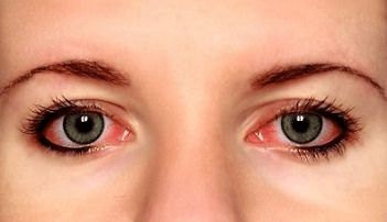 home_remedies_for_red_eyes