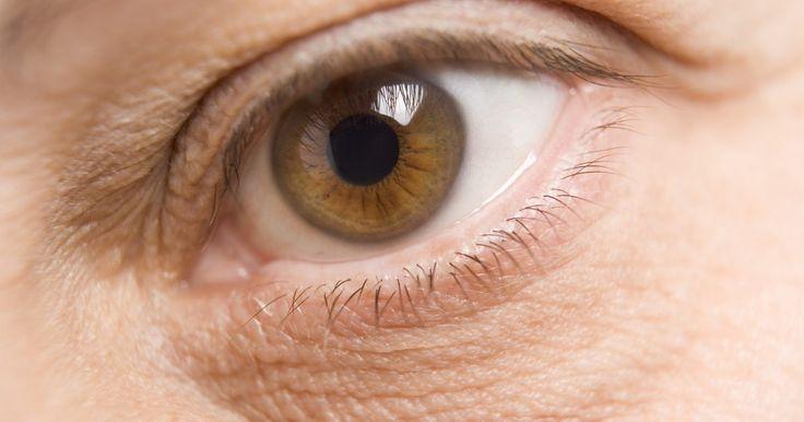 Como prevenir olhos inchados. Muitas razões possíveis, como estresse, retenção de líquido, alergias e alterações hormonais, podem ser a causa de olhos inchados. Hábitos saudáveis não irão lhe custar nada, mas ajudarão a evitar o inchaço ao redor dos olhos e das pálpebras. No entanto, se for acompanhado por coceira, queimação ou perda de visão, o inchaço pode ser sinal de ...