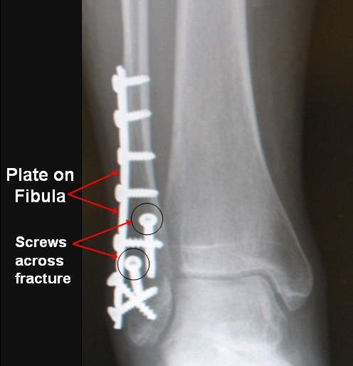 (Please note...this is not my x-ray. Mine actually looks WAY worse. This is a representation of a similar surgical correction.) November 19th snapped right leg (broken tibia, fibula and ankle)...had orthopedic surgery and have a rod, a plate and 14 screws in my new bionic leg.