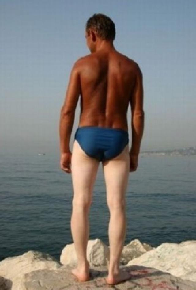Bilderesultat for worst sunburned