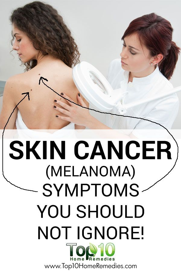 Melanoma (Skin Cancer) Symptoms You Should Not Ignore