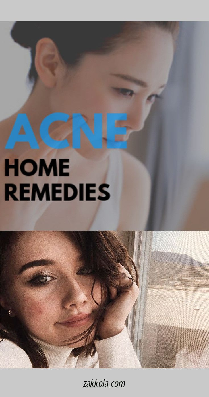 Discover more about acne. Please click here to ge…