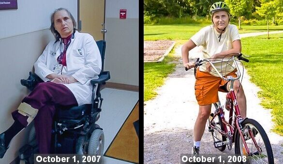 Reversing MS with The Wahls Protocol  Dr. Terry Wahls (M.D. and PhD) talks about how she reversed progressive MS with her real food Wahls protocol.