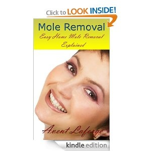 Mole Removal - Easy Home Mole Removal Explained: Avent Laforge: Amazon.com: Kindle Store