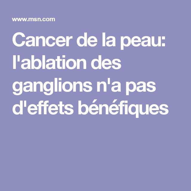 Cancer de la peau: l'ablation des ganglions n'a pas d'effets bénéfiques