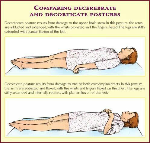 Brain injury postures