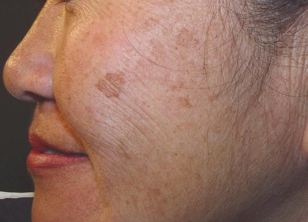 Sponsored Links When skin is exposed to the sun, it causes an increase in the production of cells known as melanocytes that increase melanin in the skin, thus turning the skin darker. These dark skin patches are known as brown spots, age spots, dark spots, sun spots and liver spots. Brown spots generally appear on …