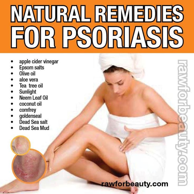 Natural Cures Treatment For Scalp Psoriasis