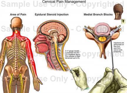 Occipital Neuralgia - cervical pain management