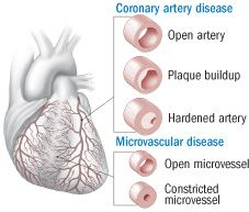 A great overview of Women's heart disease - Coronary microvascular dysfunction - it's not as rare as you think!