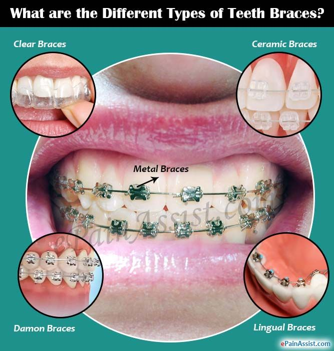 What are the Different Types of Teeth Braces?