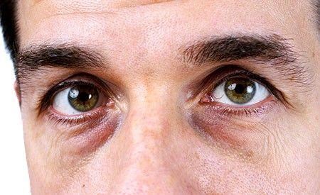 Dunkle Augenränder oder Augenringe kennt wahrscheinlich jeder. Augenringe entstehen, wenn besonders viel sauerstoffarmes Blut durch die Adern verläuft. Dunkle Augenringe sind nicht immer auf harmlose Ursachen zurückführen, in manchen Fällen können auch ernsthafte gesundheitliche Probleme dahinter stecken.