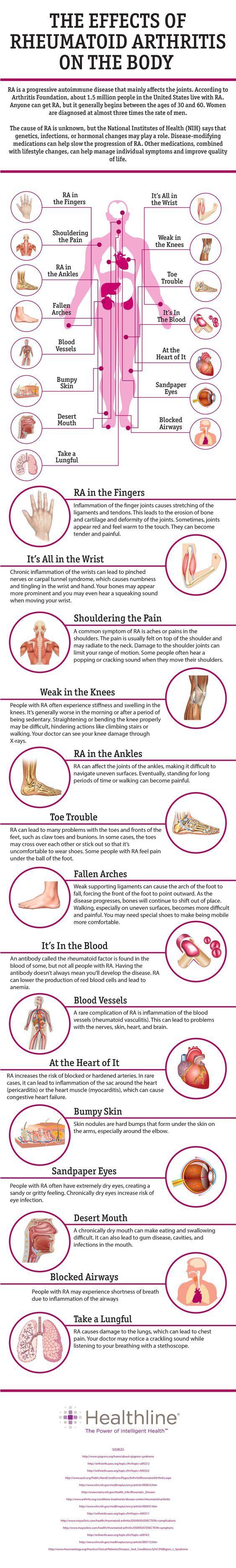 The Effects of Rheumatoid Arthritis On the Body
