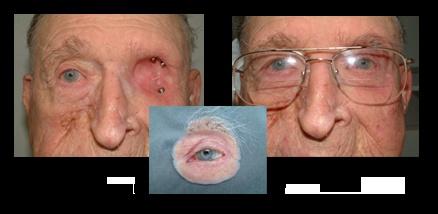 eye prothesis