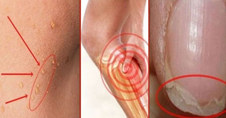 Ломаются ногти, выпадают волосы и постоянно болит голова, значит у вас дефицит этих веществ!