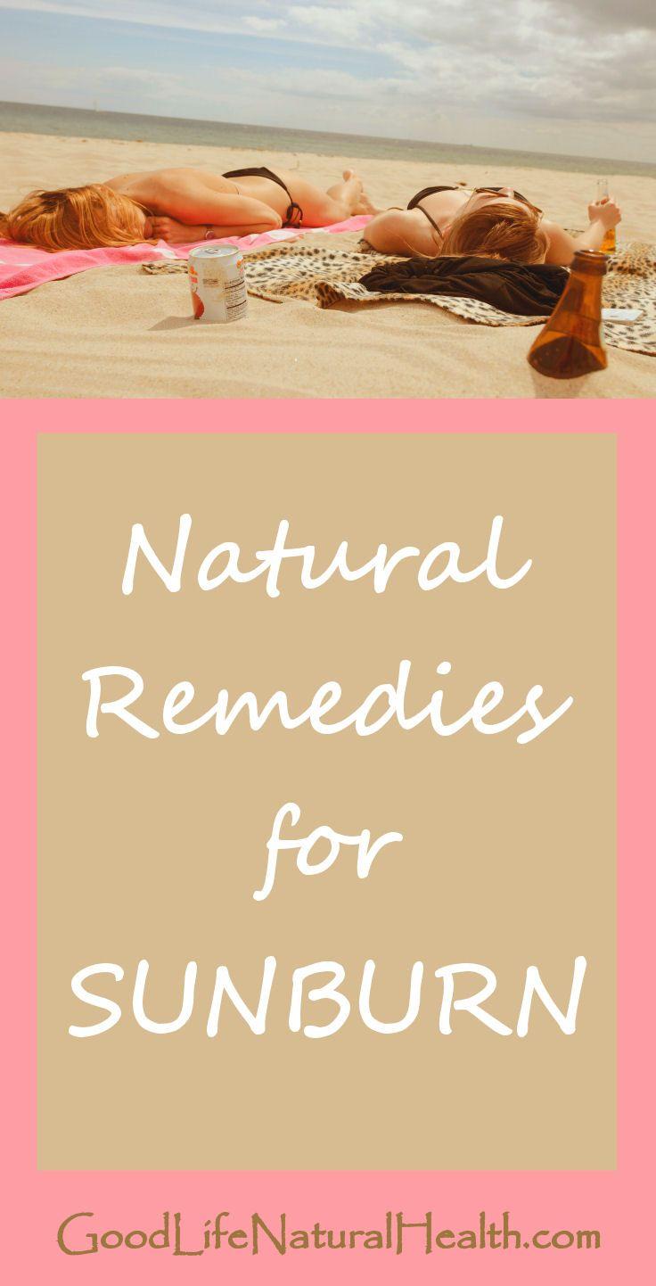 Home remedies for sunburn http://goodlifenaturalhealth.com/home-remedies-for-sunburn/ #natural #health #homeremedies