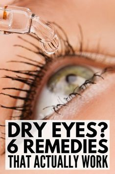 Dry Burning Eyes: 6 Remedies for Dry Eye Syndrome | Dry, burning, itchy, red, sore, and blurry eyes got you down? Want to know how to get rid of dry eye once and for all? We're sharing our best natural treatments as well as our favorite OTC product to soothe and comfort your eyes FAST!