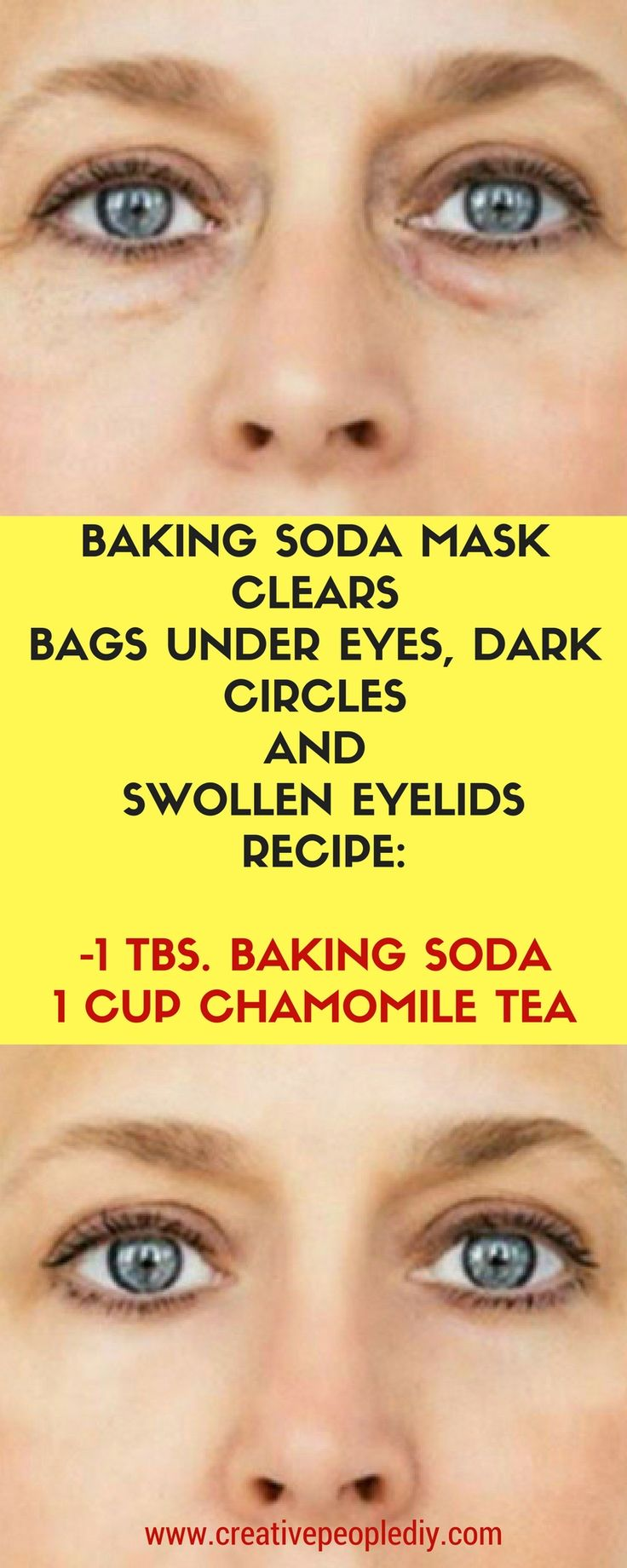BAKING SODA MASK CLEARS BAGS UNDER EYES, DARK CIRCLES AND SWOLLEN EYELIDS (RECIPE)