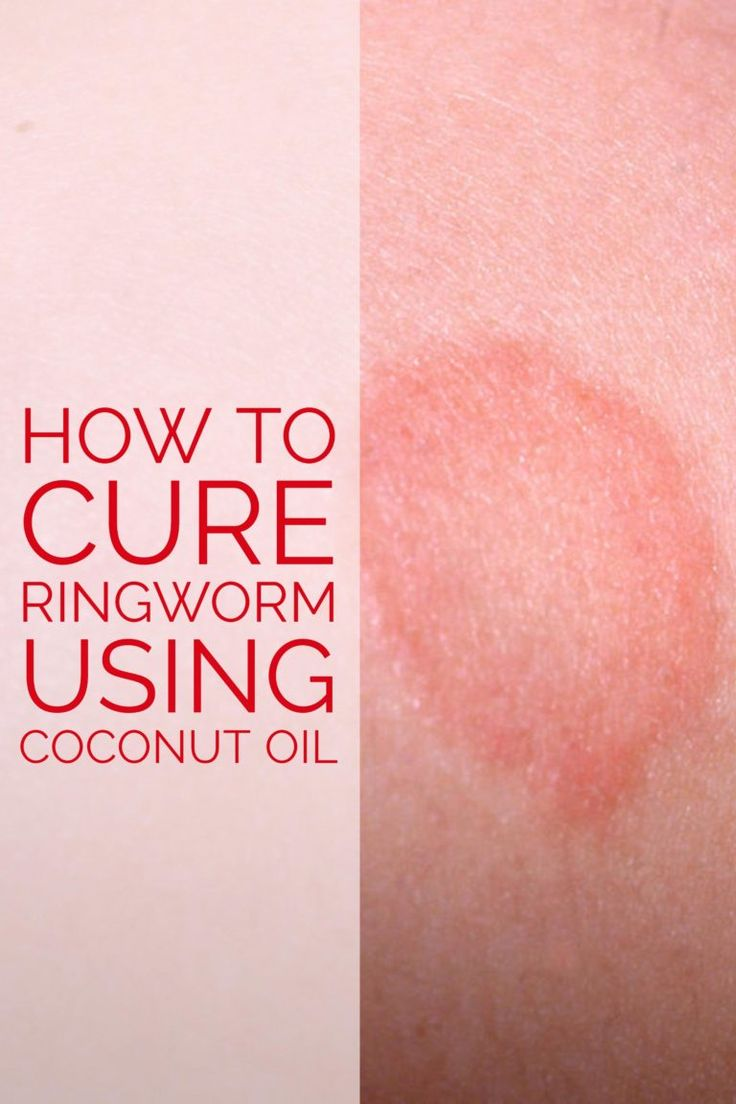 Is Coconut Oil good for Ringworm?