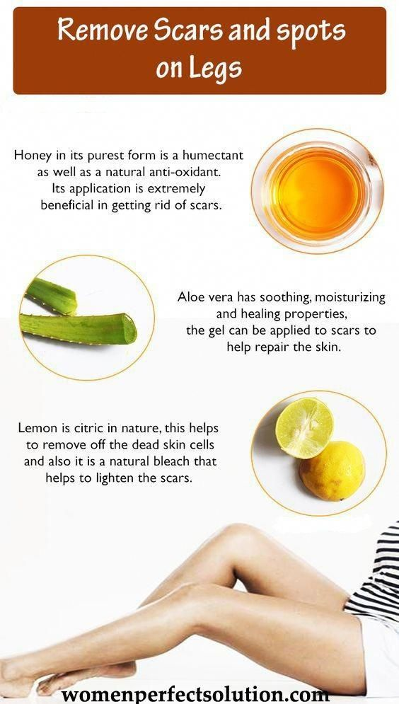 Pin Em Natural Cold Cures And Home Remedies