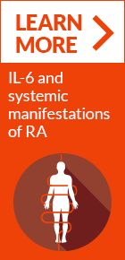 Elevated IL-6 and RA Disease Activity