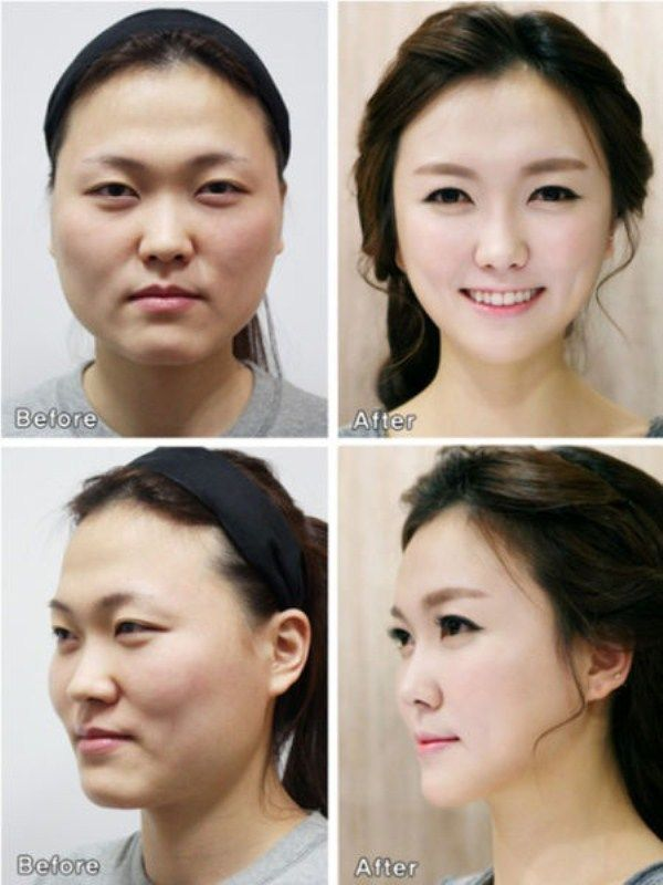 Botched Korean Plastic Surgery Before And After