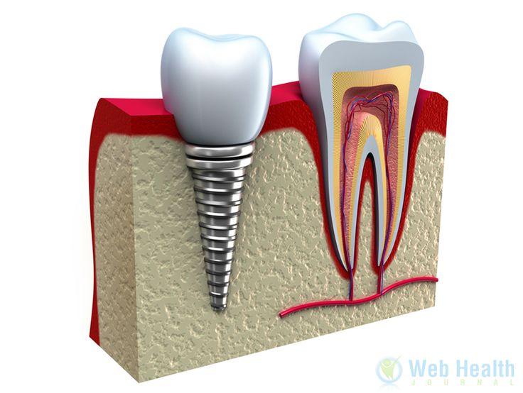 Dangers of Dental Implants - Dental Implant Facts : #health #health_tips #health_care #dental_health #wellness #healthy_living #health_fitness