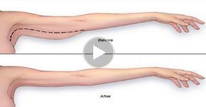 Acest videoclip vă prezintă o varietate imensă de exerciții ce vă vor ajuta să vă mențineți în formă și să fiți energici toată ziua, iar în timp să căpătați cele mai tonifiate brațe. Mușchii lucrați intens prin intermediul acestor exerciții sunt umerii, bicepșii și tricepșii. Priviți videoclipul! Ridicările în V cu ganterele sunt primele exerciții pe care le puteți încerca. Mâinile poziționate în față și ridicați ganterele până mâinile ajung perpendicular pe corp. Repetați mișcarea de 15…