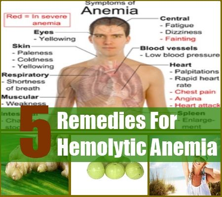 5 Home Remedies For Hemolytic Anemia - won't stop most hemolytic episodes but might help you recover from them