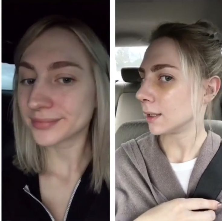 Nose Job Surgery Recovery Cast Removal Two Week Post Op Reveal Until The Very Trend Nose Job Recovery Rhinoplasty Nose Jobs Nose Job