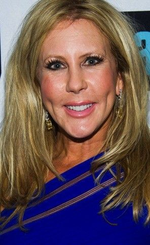 Vicki Gunvalson: Plastic Surgery Looks Great, Tamra Barney & Gretchen Rossi Are FAKE