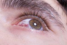 Der Blick in die Augen erlaubt den Rückschluss auf verschiedene Krankheiten