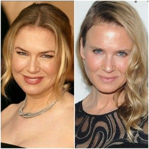 20 WORST CELEBRITY PLASTIC SURGERY THAT WENT WRONG - …