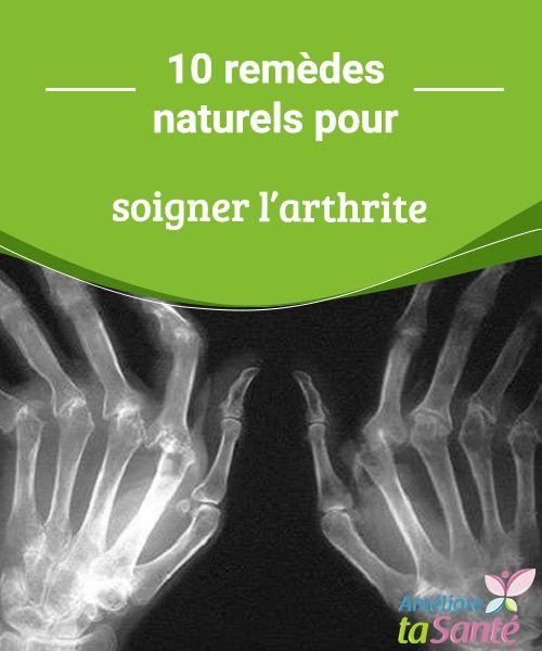 Les remèdes naturels pour soigner l'arthrite   L'arthrite est une maladie chronique et dégénérative provoquant l'inflammation de la membrane qui recouvre et protège le cartilage des articulations.