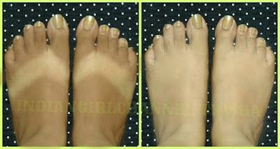 Skin Whitening Home Remedy 100% Effective / Remove Tan Instantly   Healthy Living 93