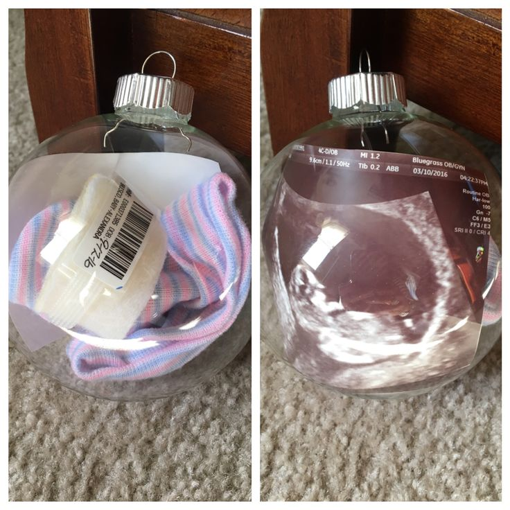 Newborn hospital band and hat with an ultrasound pic inside of a clear glass Christmas ornament to remember these sweet little things every year