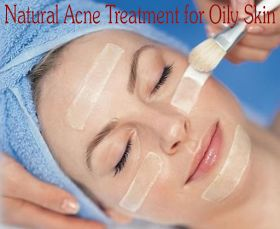#Natural #Acne #Treatment for Oily #Skin   DIY Skin Care & Recipes