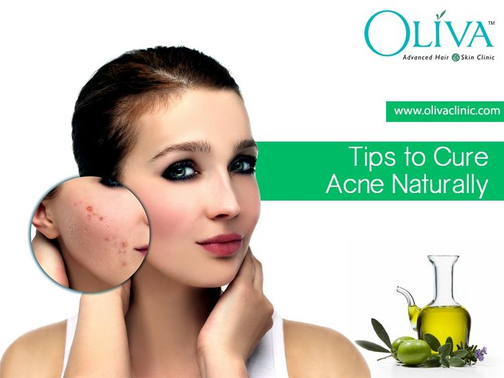 Permanent Cure For Acne Naturally