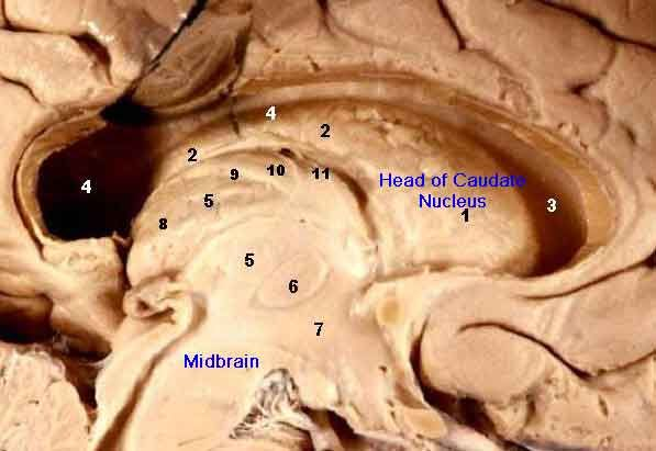 Subcortical brain anatomical specimen model: corpus striata, or basal ganglia, including the caudate nucleus labeled 1 and 2 and the midbrain. Provided by John A. Beal of the Department of Cellular Biology and Anatomy, Louisiana State University Health Sciences Center