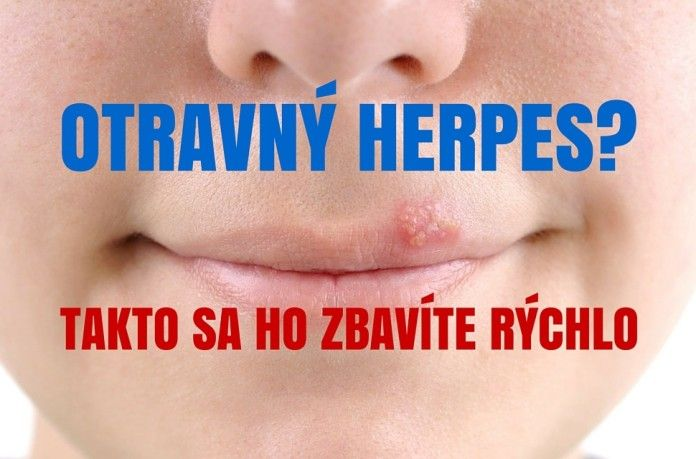 Domáce recepty na liečbu herpesu, ktoré skutočne fungujú! - TOPMAGAZIN.sk