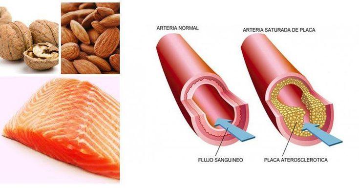 Grasas buenas para perder peso y cuidar tu corazón; ¡todo beneficios!