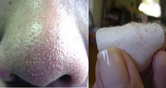 Home Remedy to Get Rid Of Blackheads On Nose Fast