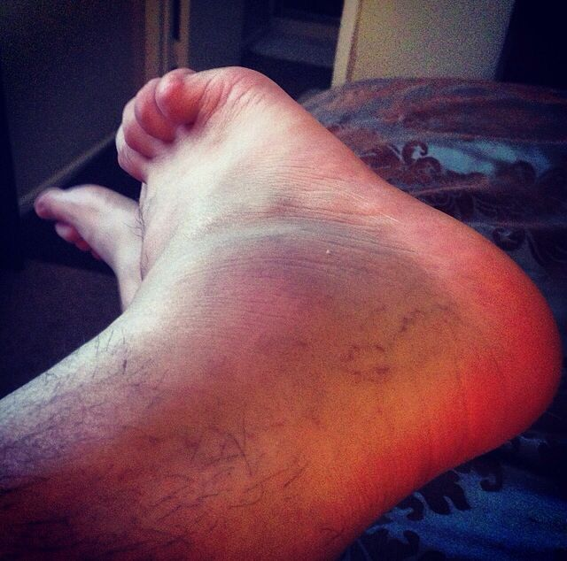 Bad sprain ankle injury