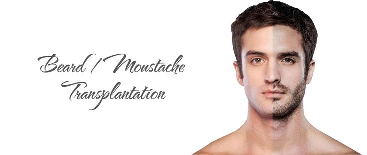 Best Beard Transplantation in South Delhi  Best Beard and Moustache Transplantion in South Delhi by Dermaclinix.This procedure have done by world's Best hair transplant surgeons, who are qualified from AIIMS and members of ISHRS(USA).