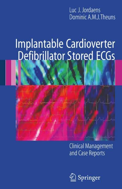 Implantable Cardioverter Defibrillator Stored ECGs PDF