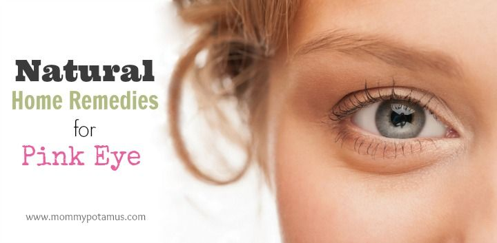 5 Natural Remedies For Pink Eye
