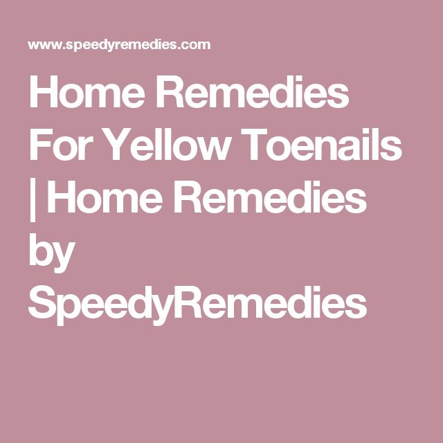 Best 25+ Toenails yellow ideas on Pinterest | Yellow toe nails ...