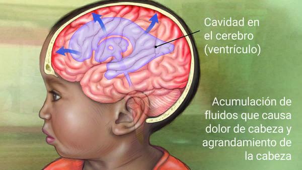 Líquido en el dolor de cabeza