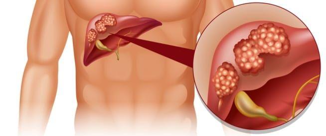 علاج سرطان الكبد في تايلاند الأعراض و الأسباب و أفضل المستشفيات